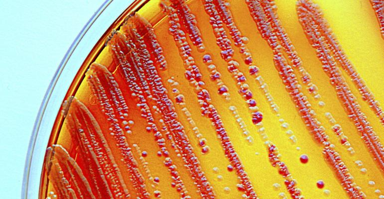 bacteria_petri dish_enterobacteria_Scharvik_iStock-507855935.jpg