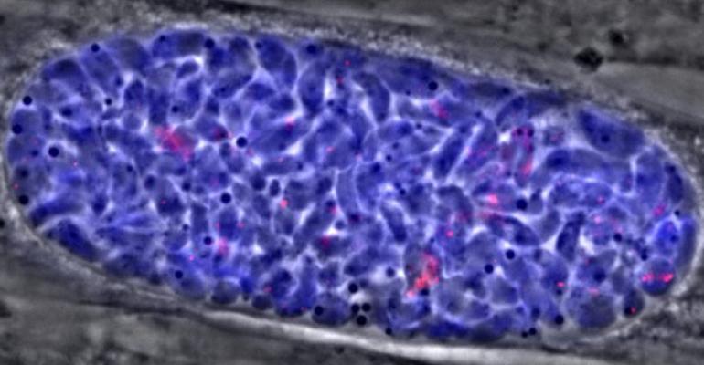 Image of toxoplasma cyst