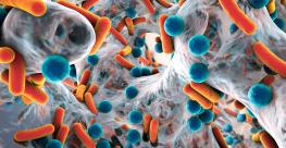 Antimicrobial resistant bacteria_Dr_Microbe_iStock_Getty Images-615889954.jpg